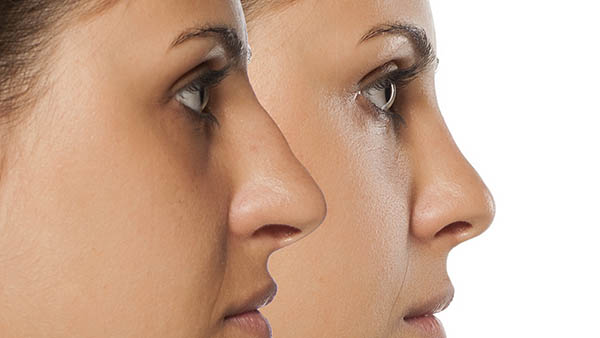Docteur Vladimir MITZ chirurgien Paris 6 75006 chirurgie esthetique chirurgie du visage Chirurgie du nez Rhinoplastie