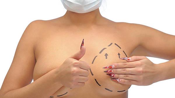 Docteur Vladimir MITZ chirurgien Paris 6 75006 chirurgie reparatrice Chirurgie du corps chirurgie des seins Reduction mammaire