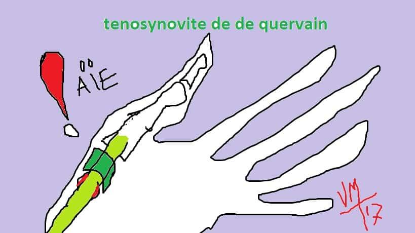 Docteur Vladimir MITZ chirurgien Paris 6 75006 chirurgie reparatrice chirurgie de la main Traitement de la tendinite de De Quervain