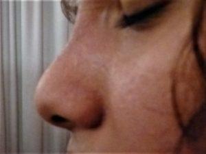 rhinoplastie médicale