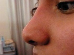 retouche nez opéré par injection