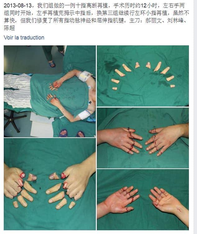 réimplantation doigts
