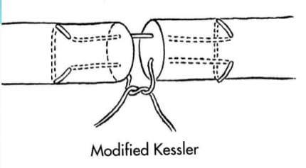 tendon flechisseur kessler tendons flechisseurs des doigts dr vladimir mitz