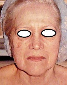 Docteur Vladimir MITZ chirurgien Paris 6 75006 chirurgie esthetique chirurgie du visage liftings cou smas lifting raté