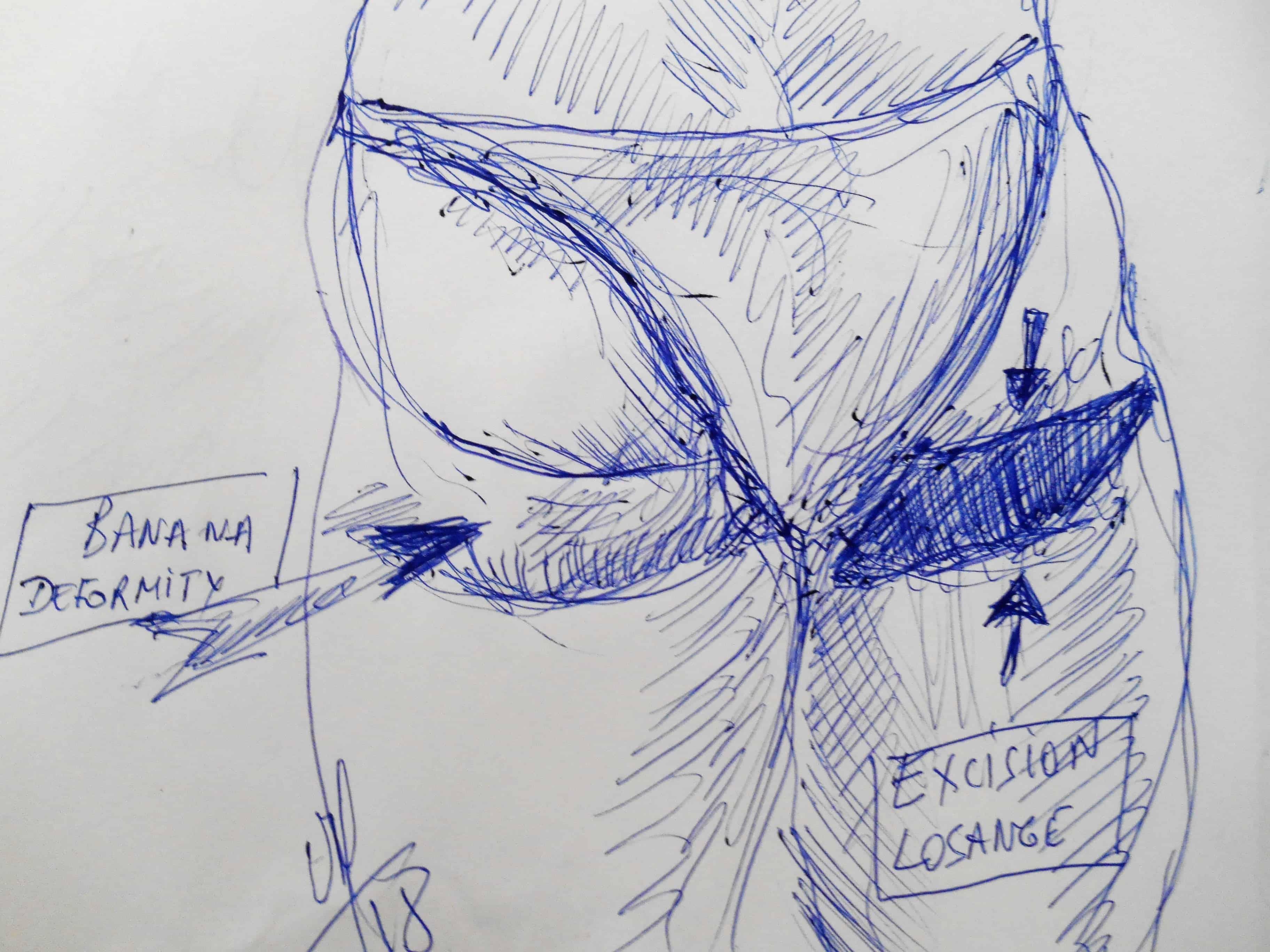 chirurgie esthetique chirurgie du corps chirurgie des fesses deformation en banane