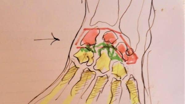 docteur vladimir mitz chirurgien esthetique paris 5 chirurgie reparatrice mains entorse scapho lunaire conflit scapho lunaire